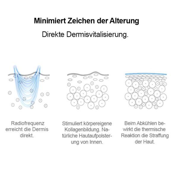 Mobiler RF Apparat – Radiofrequenztherapie, Hautlifting für unterwegs - Dermis Vitalisierung direkt