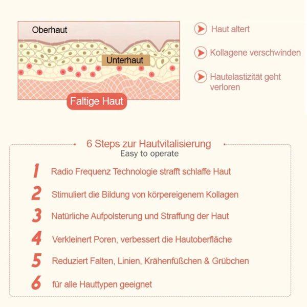 Mobiler RF Apparat – Radiofrequenztherapie, Hautlifting für unterwegs - Haut Faltenglättung