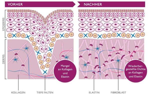 Silk'n FaceTite – Radiofrequenz Anti-Aging Gerät zur Faltenbehandlung - Radiofrequenztherapie vorher nachher