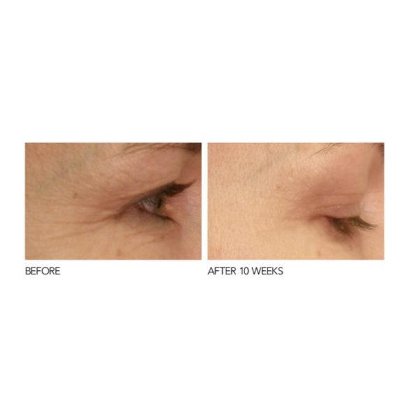 Eyecare Pro – Spectralight Augen Beauty von Dr. Dennis Gross - vorher nachher