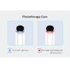 Eye Bag Remover - apparative Augenringe Behandlung, Linien, Krähenfüßchen - Ionen-Photonen Therapie