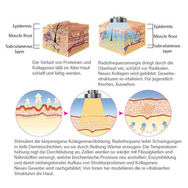 RF Profi Schönheits Ausrüstung - Ganzkörper Radiofrequenz Faltenglättung, Kollagenboosting - Wirkung