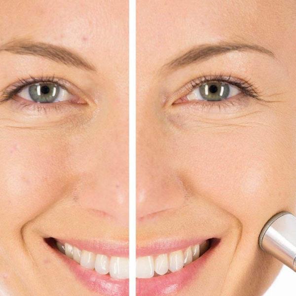 Home Gesichtspeeling Station - Anti-Aging Mikrodermabrasion - vorher nachher