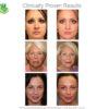 Microderm GLO Diamant System Pro - Homegerät - glatte reine Haut schon nach einer Woche - frisches Hautbild