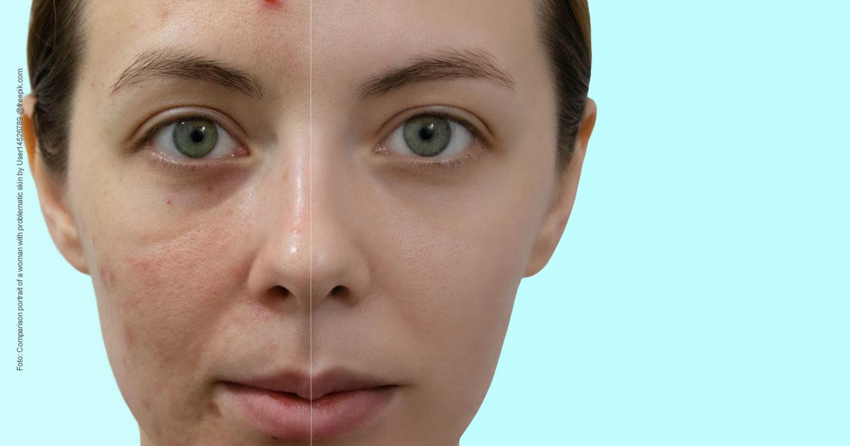 Große Poren verkleinern - Lifehacks für jedermann