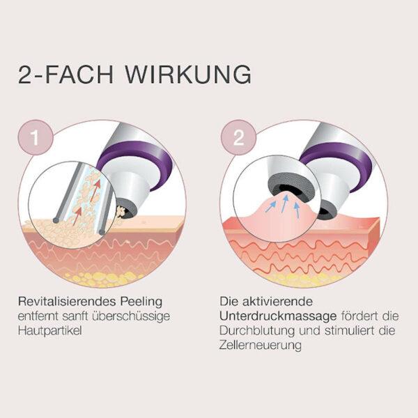 Peelinggerät FC 76 - besseres Hautbild, feinere Poren, zur Selbstanwendung - Dermabrasion Wirkung
