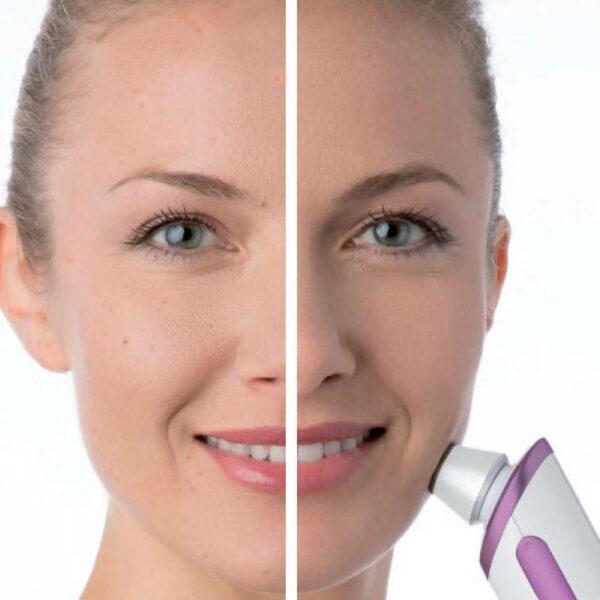Peelinggerät FC 76 - besseres Hautbild, feinere Poren, zur Selbstanwendung - Dermabrasion Wirkung Gesicht