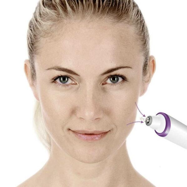 Peelinggerät FC 76 - besseres Hautbild, feinere Poren, zur Selbstanwendung - Vakuum Peelinggerät