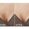Anti Aging Tapes Silicon Dekollete zur Brust Faltenbehandlung - Anti Aging Effekt