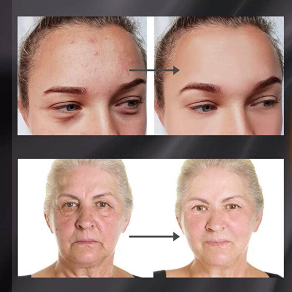 Project E-Beauty - drahtlose 7 Farben LED Maske, Hals + Gesicht, Photon LED Gesichtsbehandlung - vorher nachher