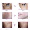 LED Gesichtsmaske - 7 Bandbreiten, Photonenbehandlung bei Akne, Falten, ergonomische Nasenform - Photonenmaske vorher nachher