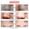 Photonen Gesichtsmaske - Photonenmaske Effekt